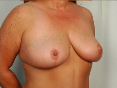 Breast Reduction - Side After - 4 months