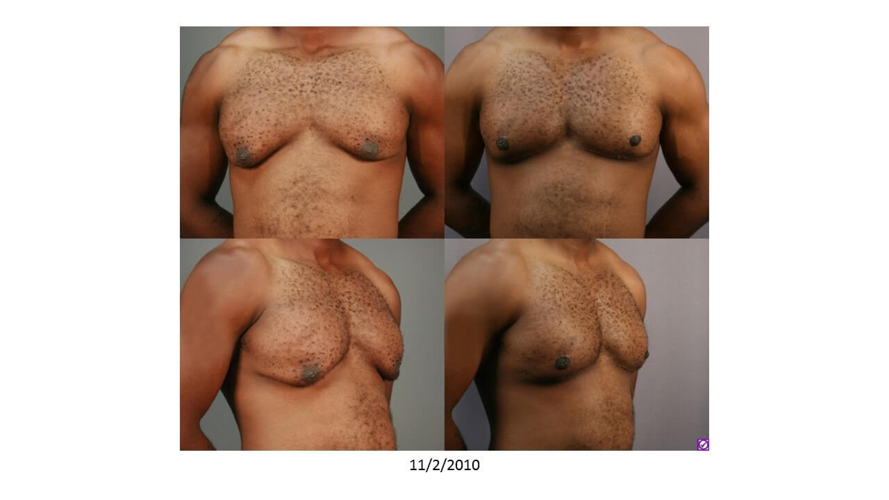 Gynecomastia - Front After