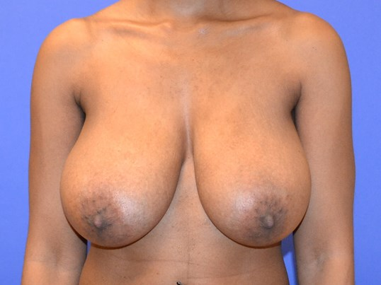 Breast Reduction - Front Before