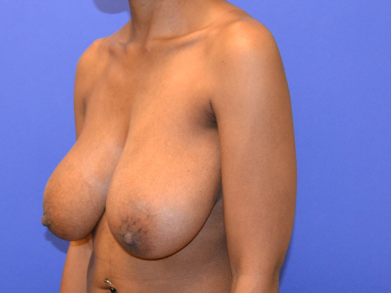 Breast Reduction - Side Before