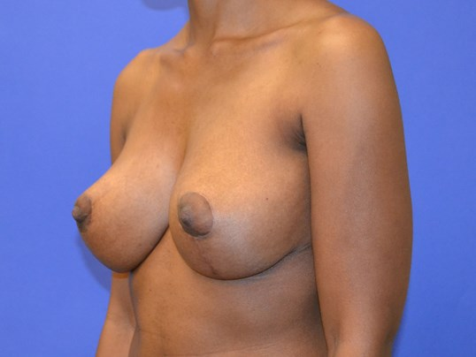 Breast Reduction - Side After