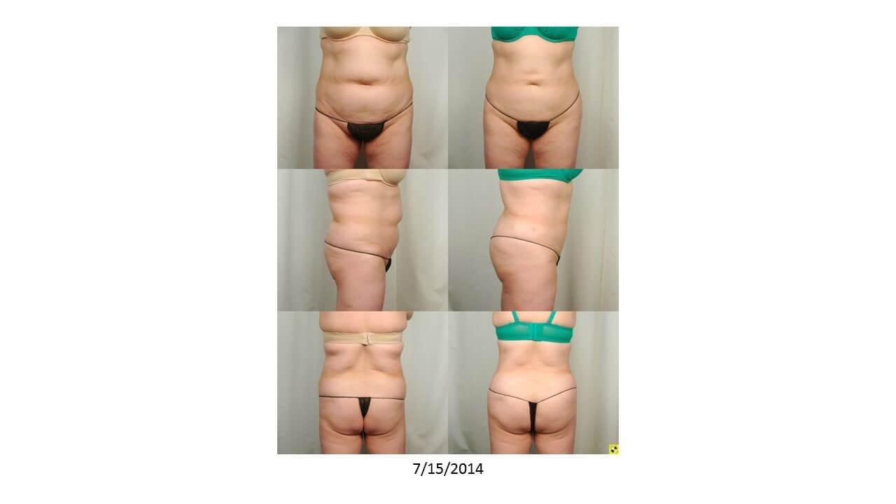 Liposuction - Front Before