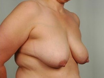 Breast Lift - Side Before