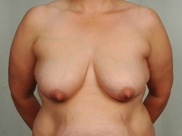 Breast Lift - Front Before