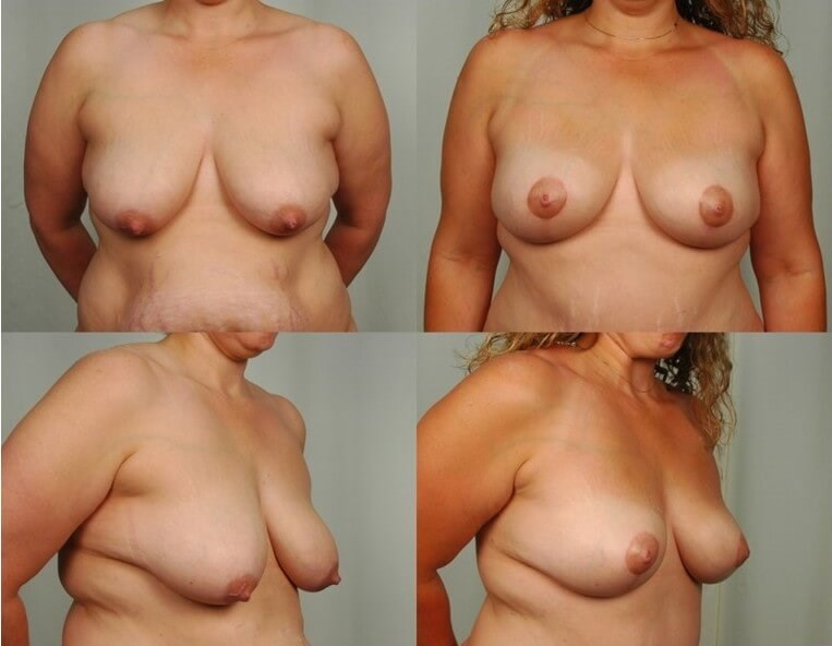 Breast Lift - Front After