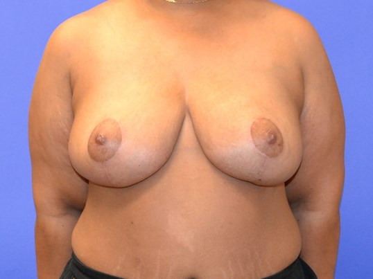 Breast Reduction - Front After