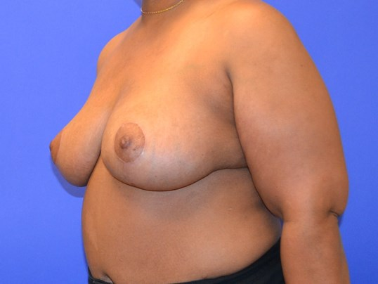 Breast Reduction - Left After
