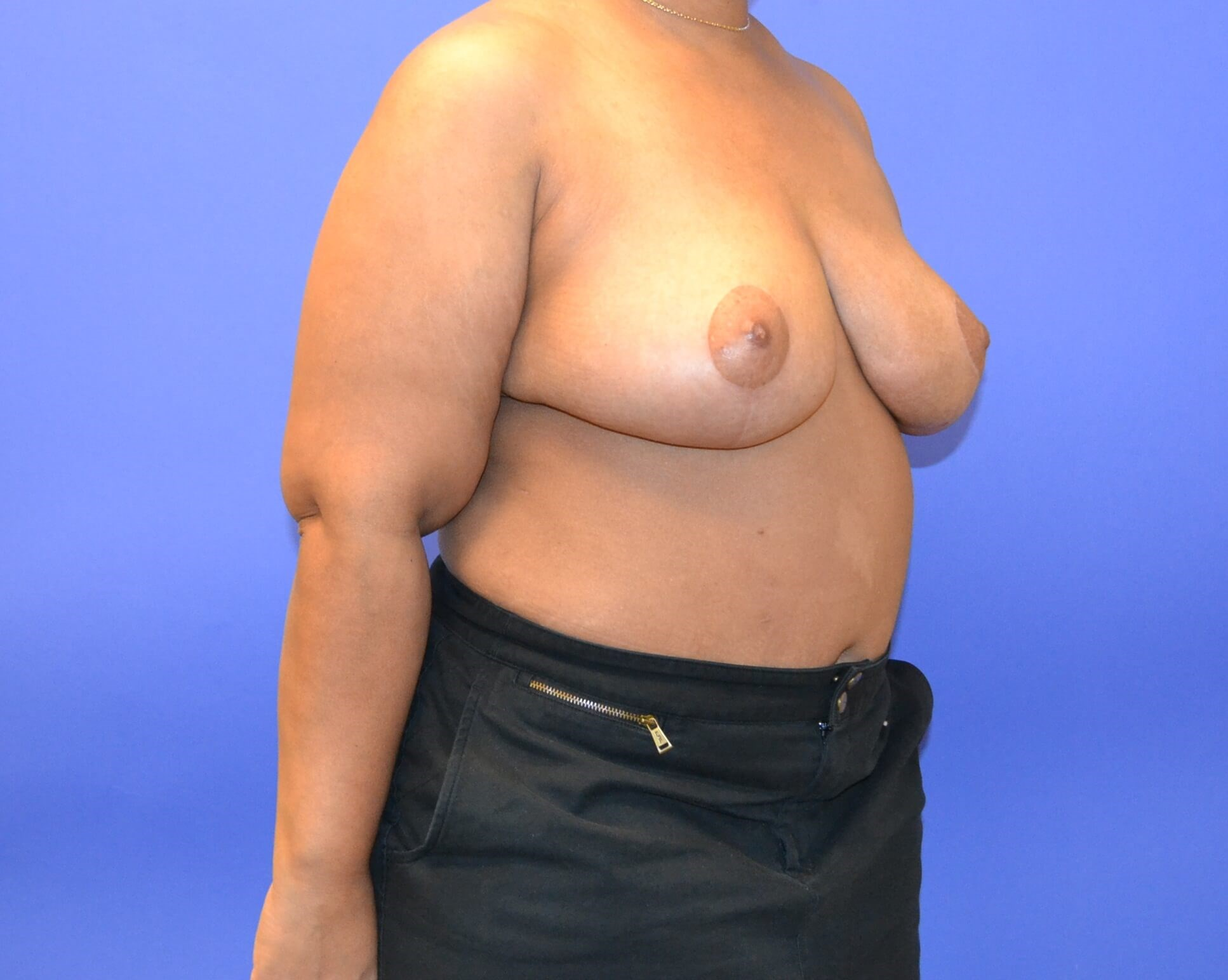 Breast Reduction - Right After