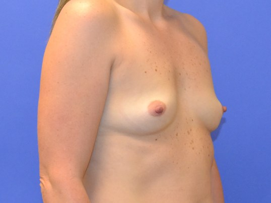 Breast Augmentation - Right Before