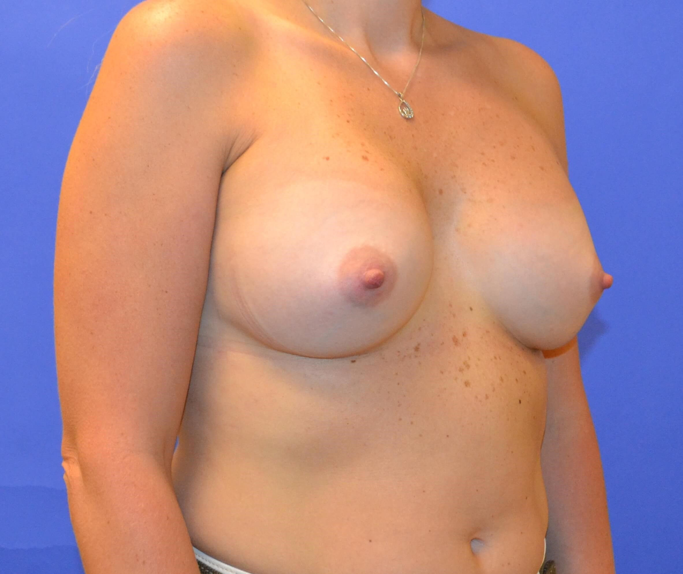 Breast Augmentation - Right After