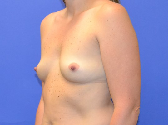 Breast Augmentation - Left Before