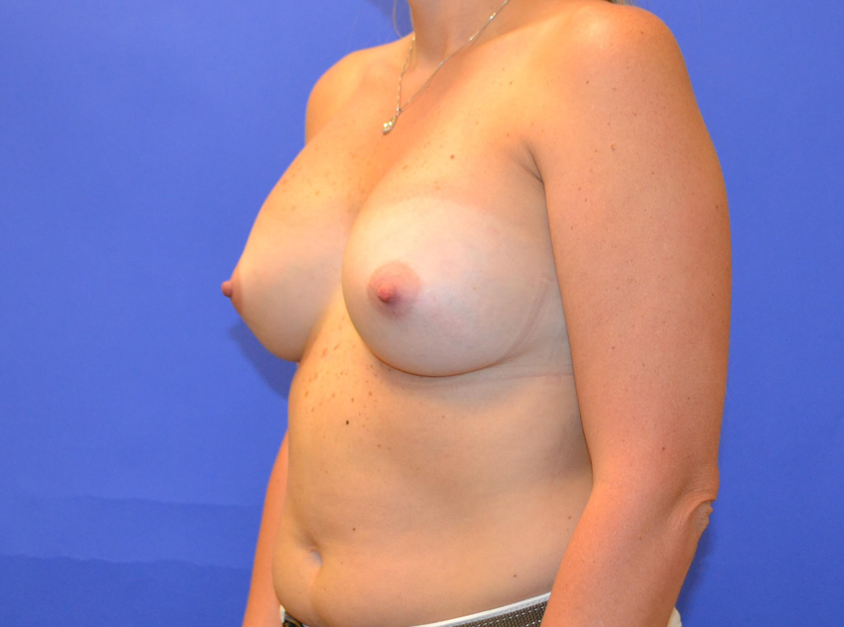 Breast Augmentation - Left After