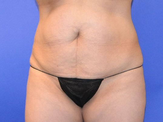 Tummy Tuck - Front Before