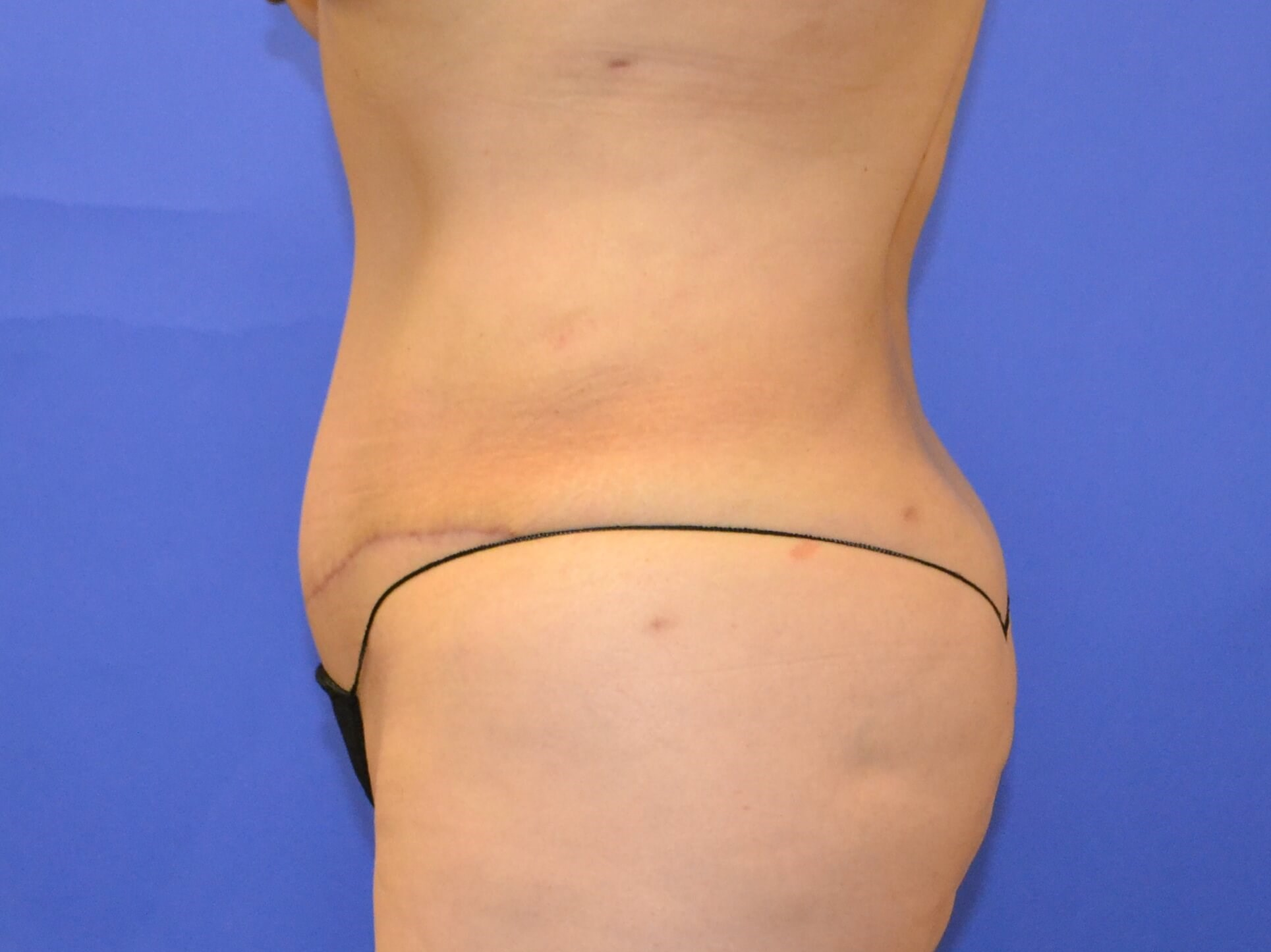 Tummy Tuck - side After