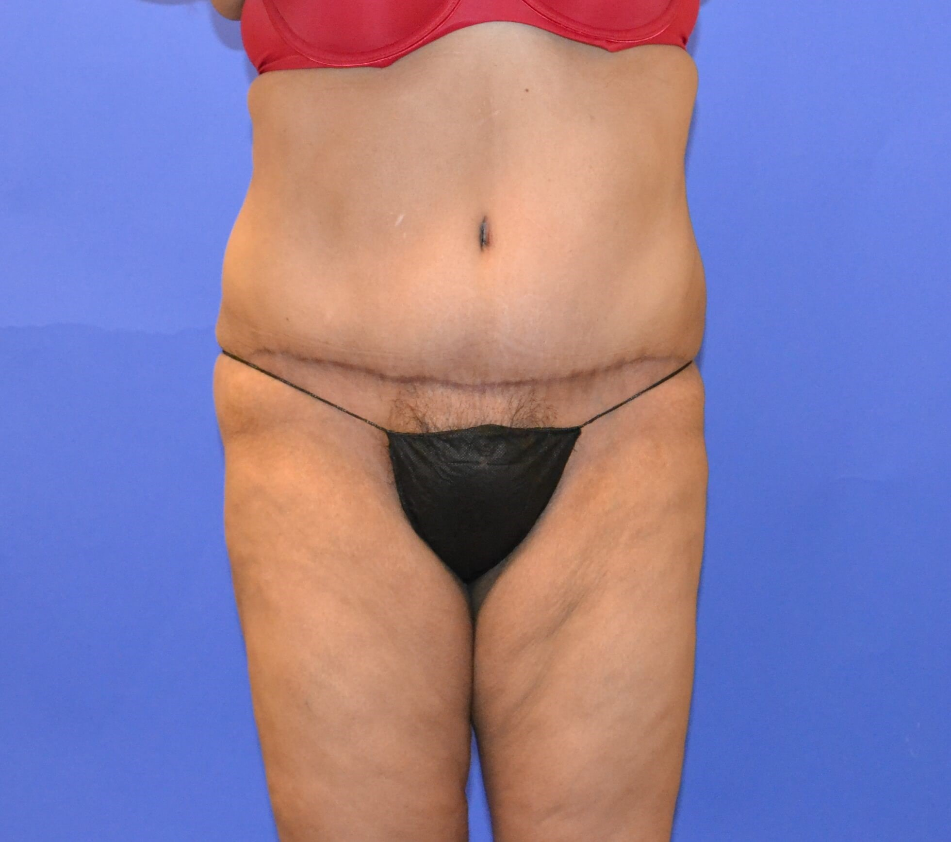 Tummy Tuck - Front view After
