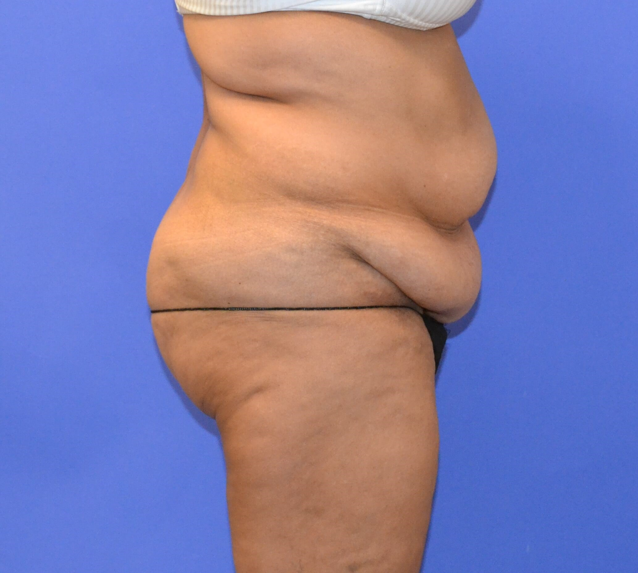 Tummy Tuck - Side view Before