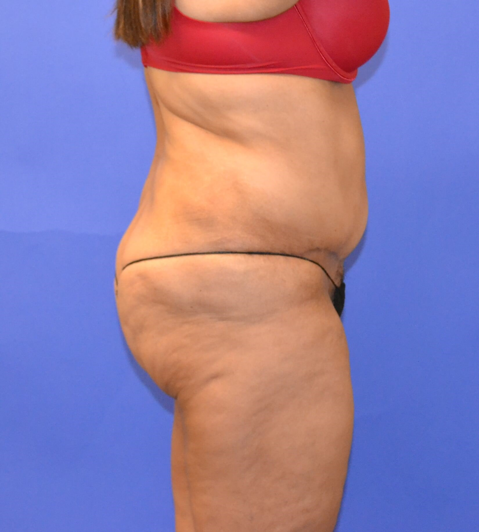 Tummy Tuck - Side view After