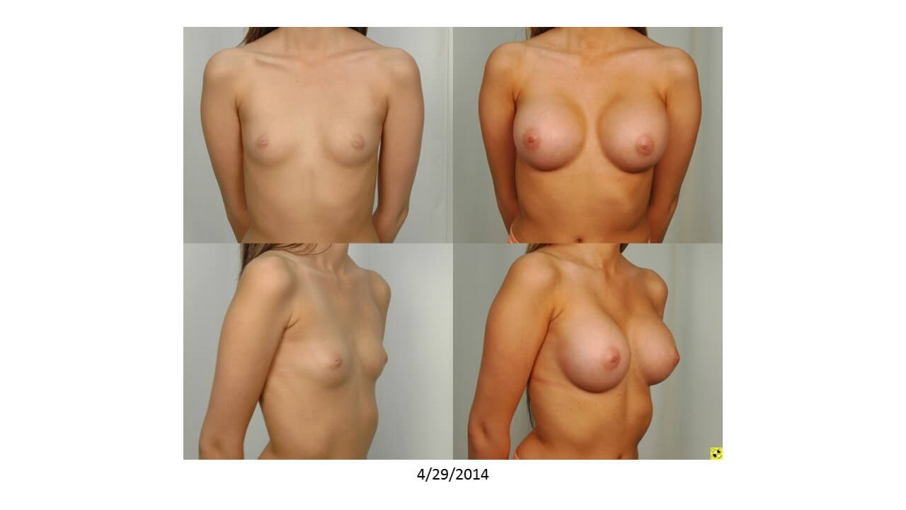 Breast Augmentation - Front Before