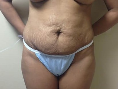 Tummy View Before