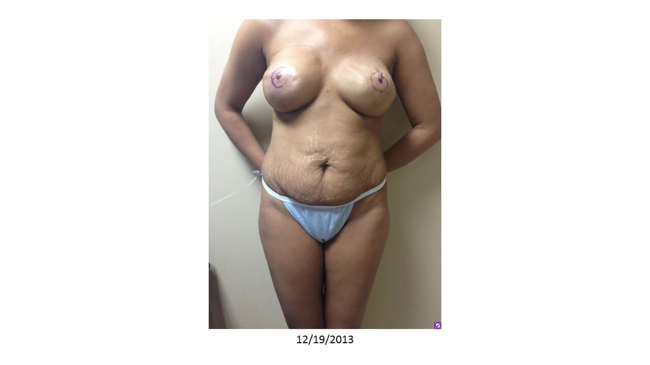 Breast Reconstruction - Front Before