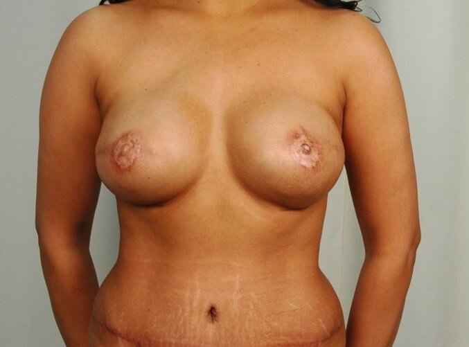 Breast Reconstruction - Front After