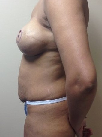 Breast Reconstruction - Side Before