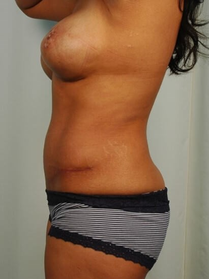 Breast Reconstruction - Side After