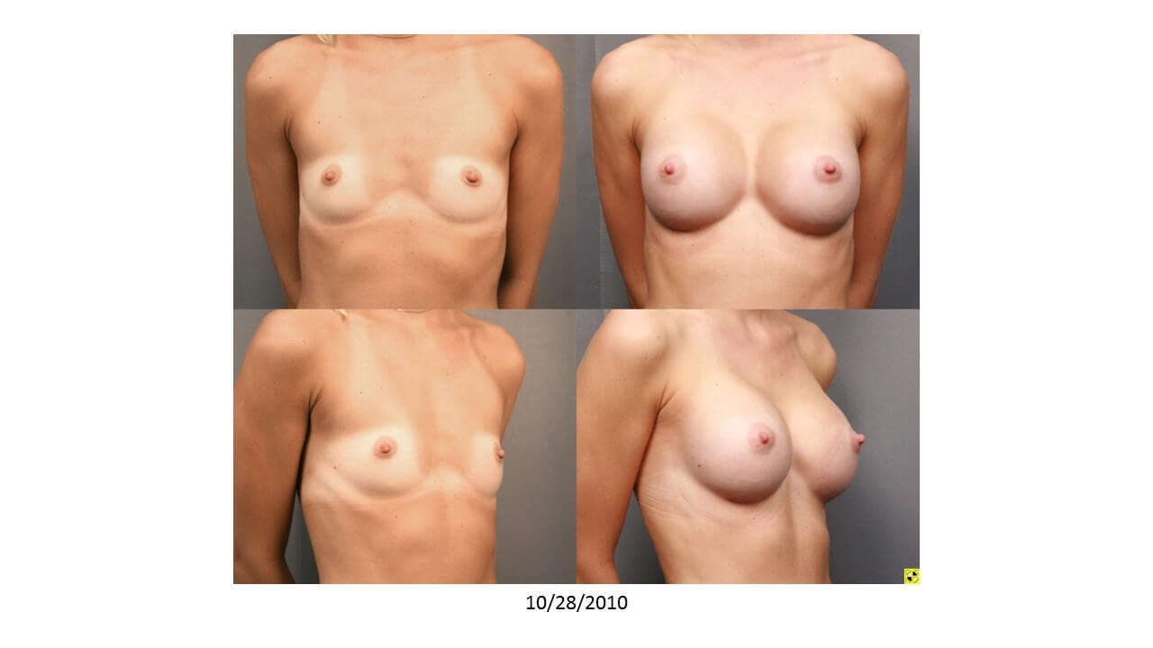 Breast Augmentation - Side After - 2 months