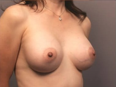 Breast Enlargement - Side After