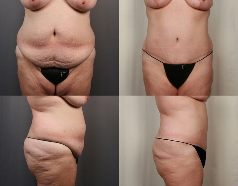 Tummy Tuck - Side After - 4 months