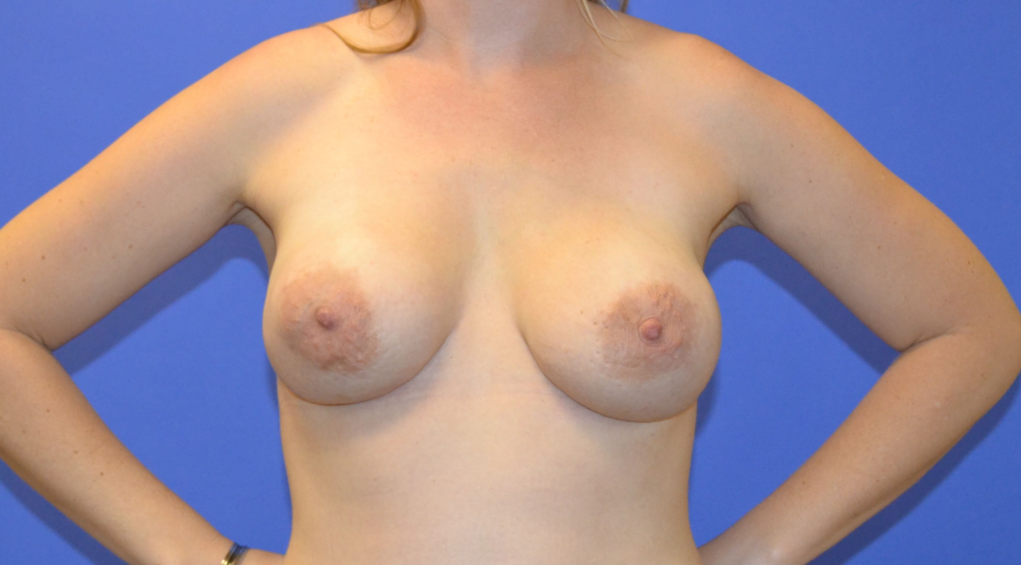 Breast Reconstruction After - Final Stage