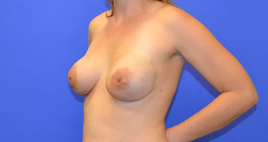 Breast Reconstruction - Side After - Final Stage