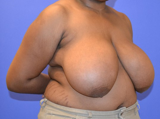 Breast Reduction - Right Before