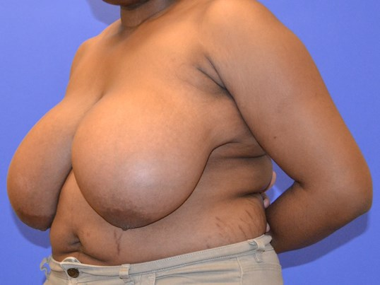 Breast Reduction - Left Before