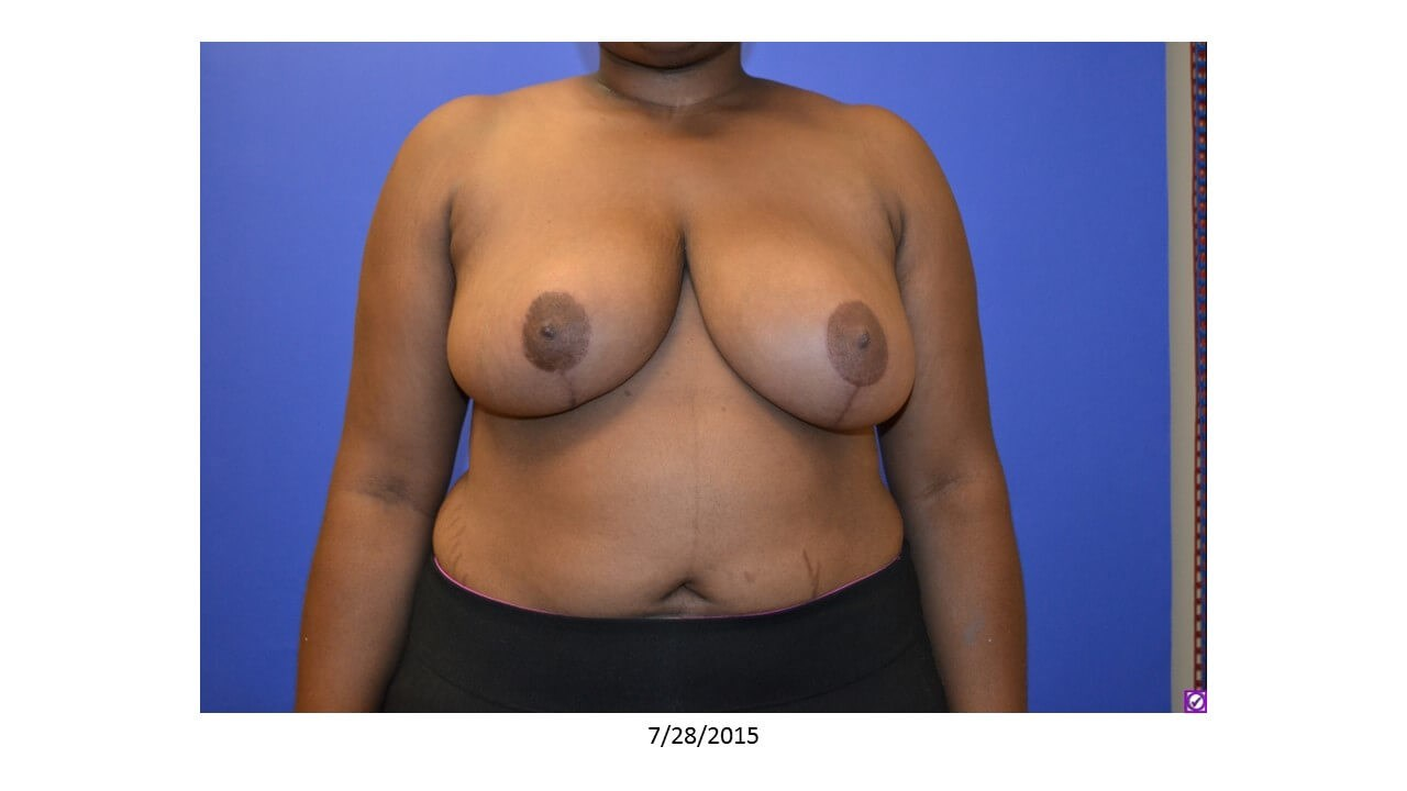 Breast Reduction - Front After 4 months