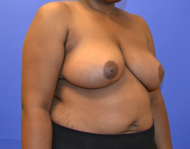 Breast Reduction - Right After 4 months