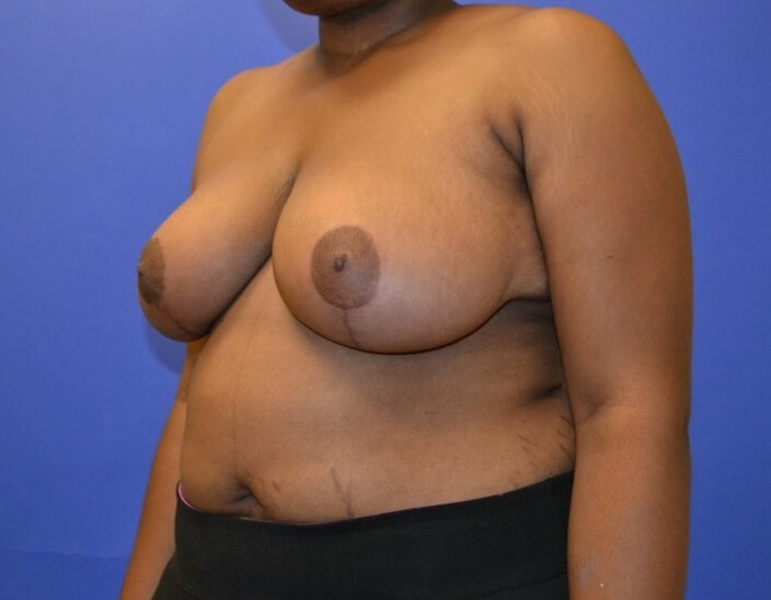 Breast Reduction - Left After 4 months