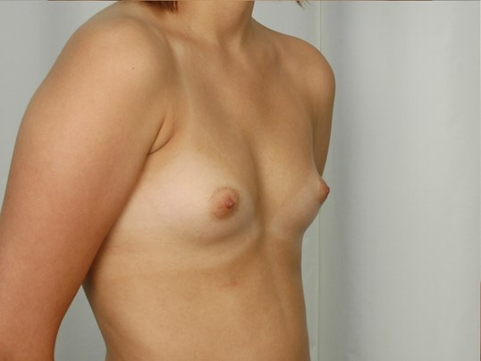 Breast Implants - Side Before