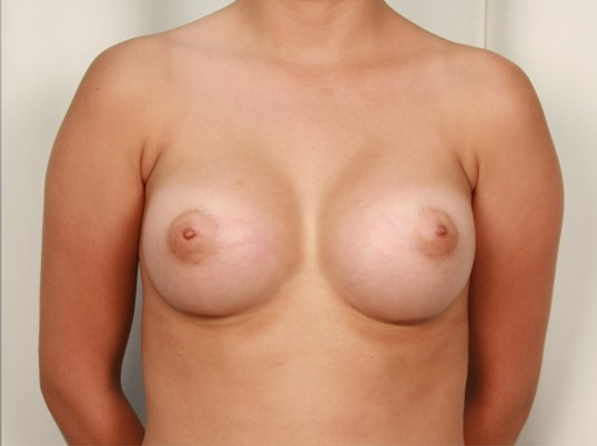 Breast Implants - Front After