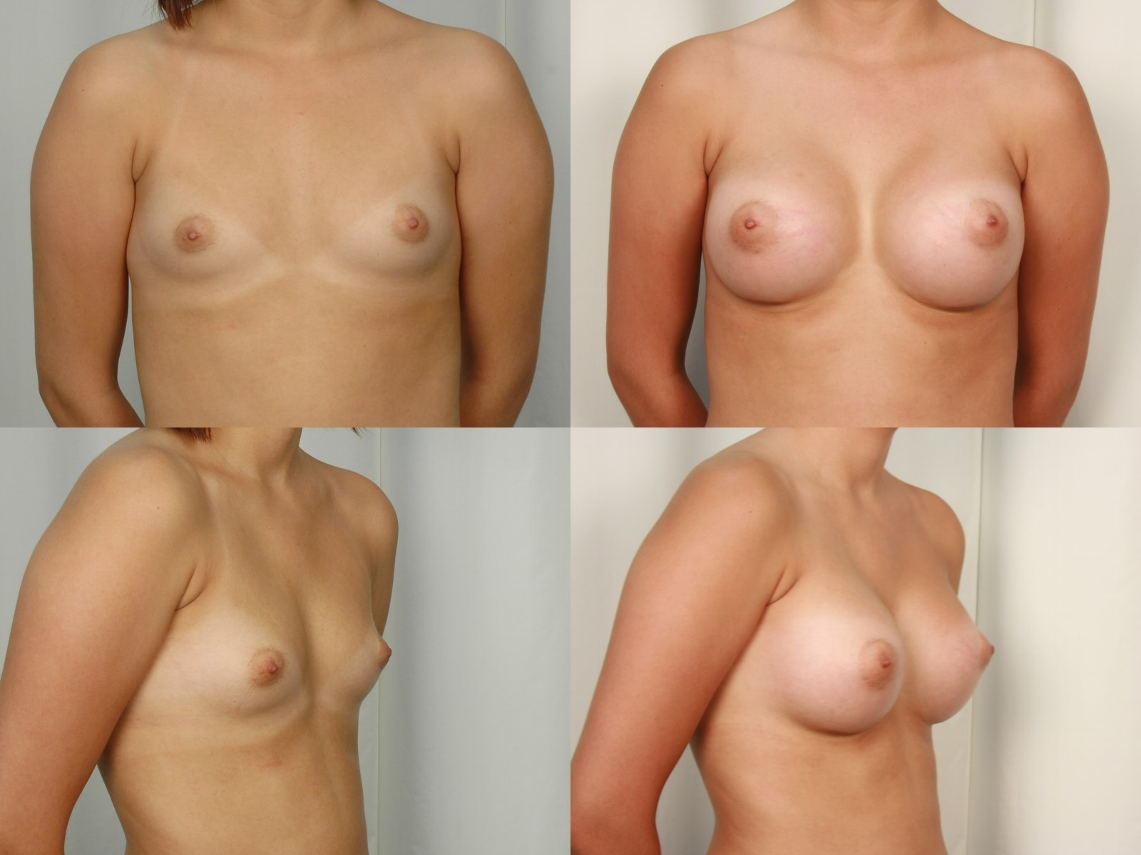 Breast Implants - Side After