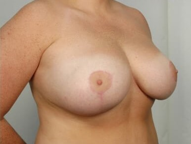 Breast Reduction: Side After