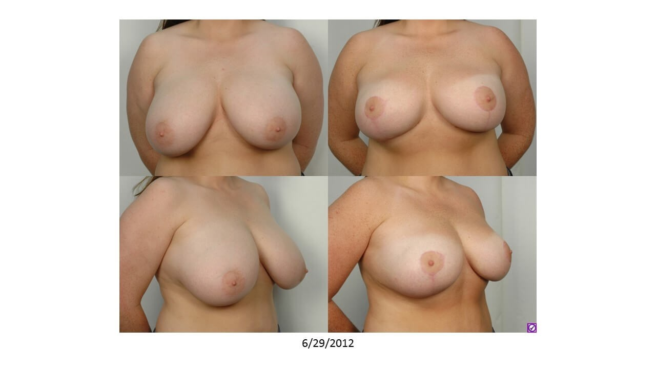 Breast Reduction: Front Before