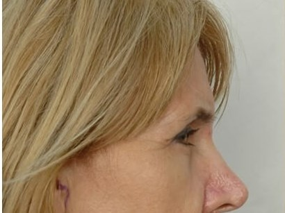 Browlift & Eyelid Surgery Before
