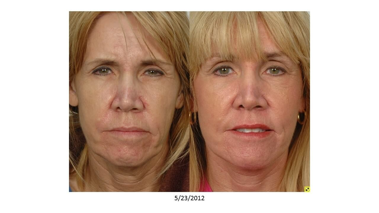 Browlift & Facelift Before