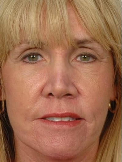 Browlift & Facelift After