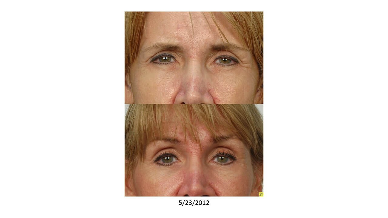 Temporal Browlift Houston Before