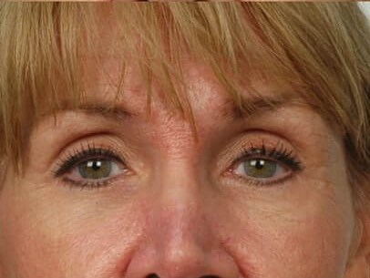 Temporal Browlift Houston After