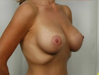 Breast Lift - Side View After