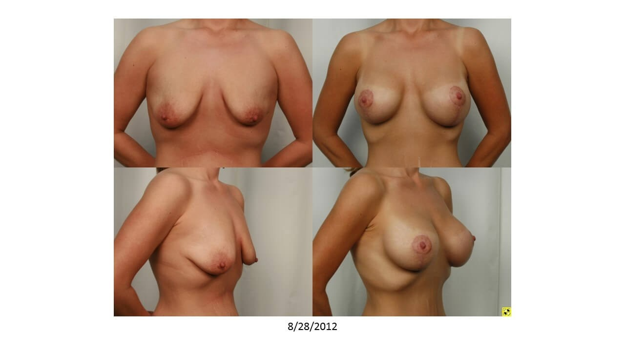 Breast Lift - Side View Before