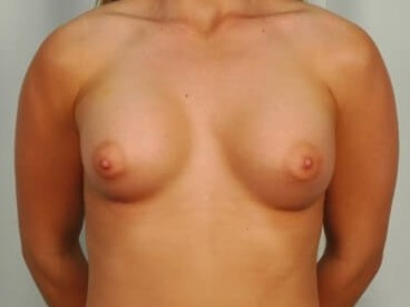Breast Enlargment - Front After